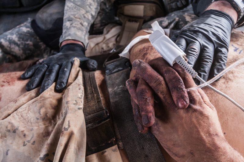 Die Hände eines schwer verletzten afghanischen Polizisten. (c) Simon Klingert